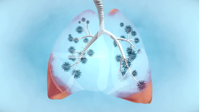 pandemic illness in lung - 4k resolution - respiratory system stock videos & royalty-free footage