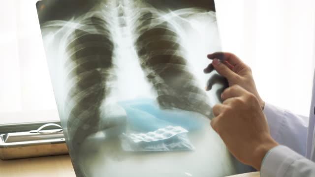 vidéos et rushes de panning tir médecin asiatique explique l'image du poumon dans la radiographie fragile au patient. le médecin porte un uniforme de robe et un stéthoscope. le medico est assis à la clinique de l'hôpital. - poumon humain