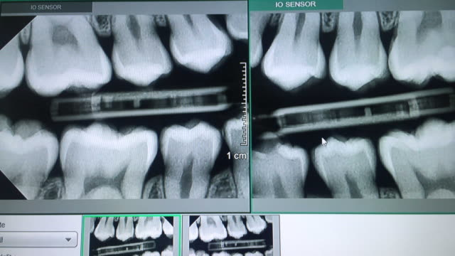 panoramic x-ray of teeth on the monitor - dentist stock videos & royalty-free footage