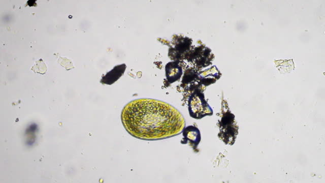 paramecium bursaria - protozoan stock videos and b-roll footage