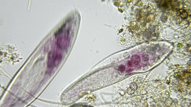 paramecium caudatum micrograph - biology stock videos & royalty-free footage