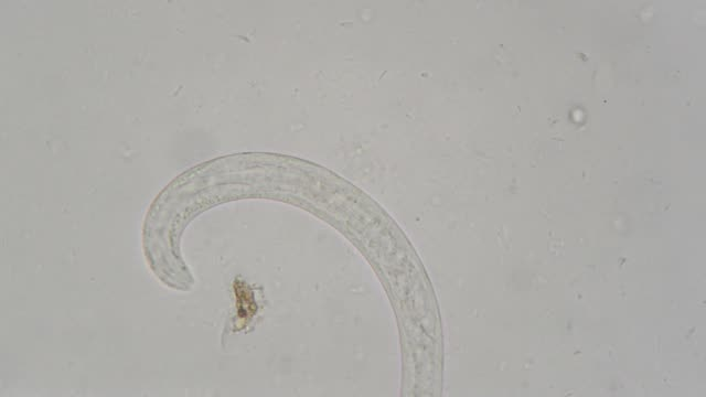 vídeos de stock, filmes e b-roll de parasita da strongeroides stercolaris: - micrografia