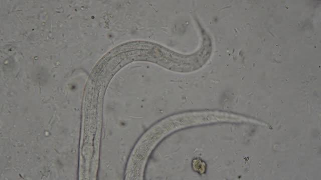 vídeos y material grabado en eventos de stock de parásito strongeroides stercolaris: - zoología