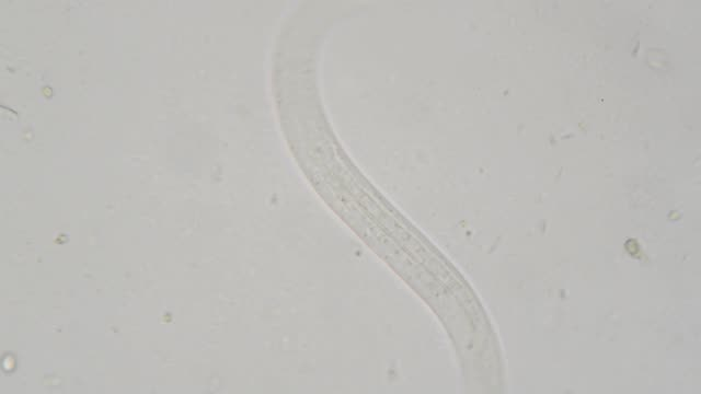 parasite : strongeroides stercolaris - unicellular organism stock videos and b-roll footage