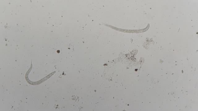 vídeos de stock, filmes e b-roll de parasita da strongeroides stercolaris: - micrografia científica