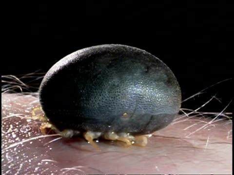 Parasite/Vector - African Tick (Ornithodorus moubata) CU tick on human skin
