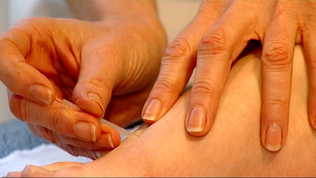 patient having acupuncture treatment - acupuncture stock videos & royalty-free footage