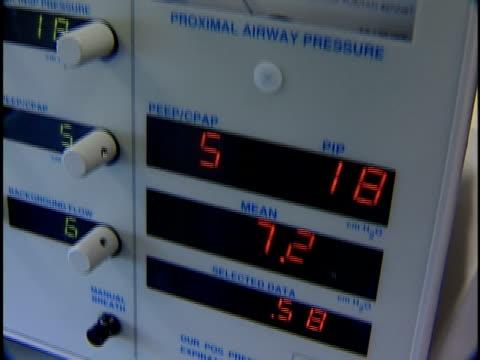 cu, td, tu, patient monitor - sichtbarer atem stock-videos und b-roll-filmmaterial