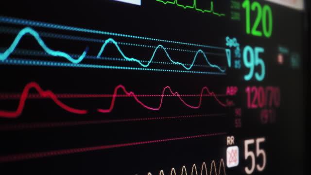 vídeos de stock, filmes e b-roll de paciente monitor - sistema de condução cardíaco