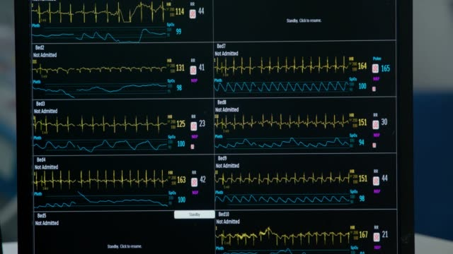 patient monitor with vital signs - sala operatoria video stock e b–roll