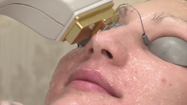patient undergoes a laser skin treatment on august 22 2013 in new york new york - exfoliation stock videos & royalty-free footage