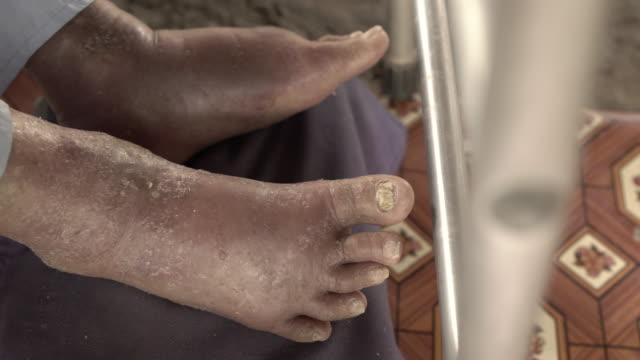 video bolight foot varicose