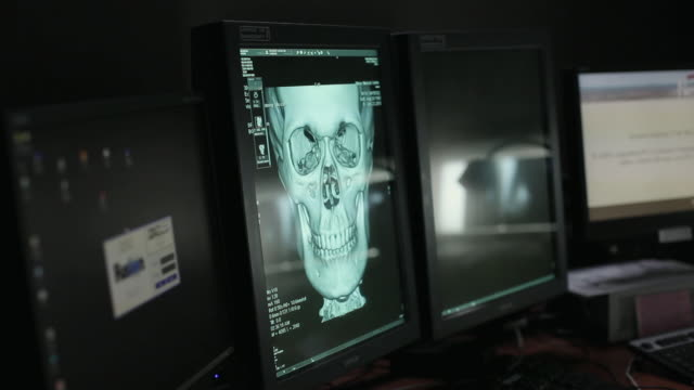 MS Patient's skull on PACS display (Picture archiving and communication system) display / Portland, Maine, USA
