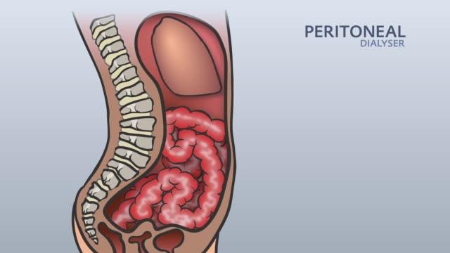 stockvideo's en b-roll-footage met peritoneal dialyse 01 - menselijke darmen