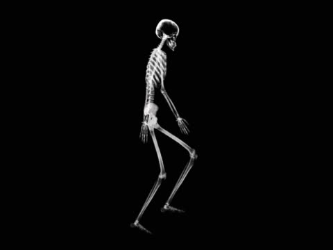 person climbing stairs - biomedical illustration stock videos & royalty-free footage