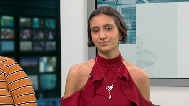 london photographer captures images of people with scars sophie mayanne and isabella fernandes live studio interview sot - scar stock videos & royalty-free footage
