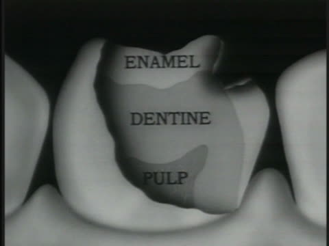 Physiology of a Tooth enamel softer dentine nerve pulp Dentine w/ tendrils added Animated drill tip showing pain Animated swab touching tooth...