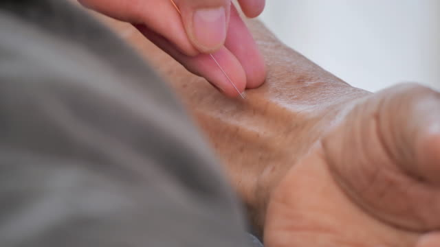 vídeos de stock e filmes b-roll de physiotherapist is doing acupuncture on the arm of a older male patient.medical, science, technology, specialist, older, healthcare and medicine, people, retirement, alternative medicine - acupuntura