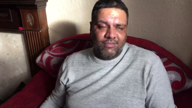Pizza delivery driver scarred for life by acid attack Imran Khan interview SOT