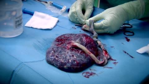 placenta with umbilical cord - 幹細胞点の映像素材/bロール