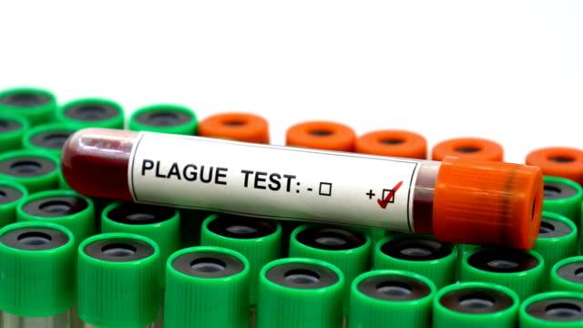 plague disease positive - epidemic stock videos & royalty-free footage