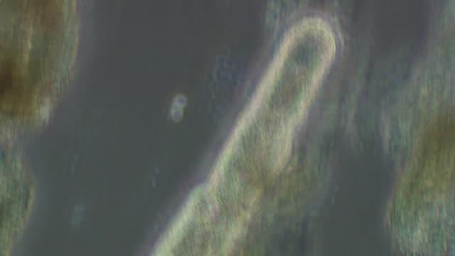 vídeos y material grabado en eventos de stock de planarian worm - planariidae