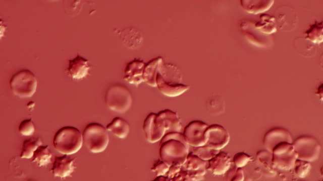 stockvideo's en b-roll-footage met plasmodium berghei, light microscopy - microbiologie