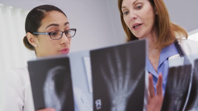 stockvideo's en b-roll-footage met portrait of 2 medical doctors looking at x rays of patients wrists - long beach californië