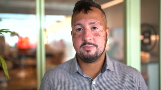 portrait of businessman with vitiligo at modern coworking - human cell stock videos & royalty-free footage