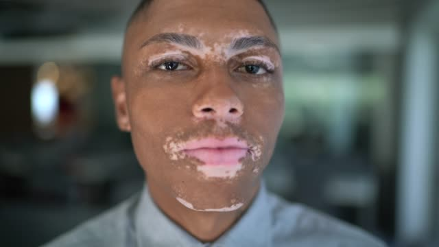 portrait of young man with vitiligo at work - young men stock videos & royalty-free footage
