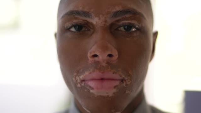 vídeos de stock, filmes e b-roll de retrato de jovem com vitiligo - etnia