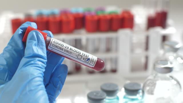 positive covid-19 virus blood test - biochemistry stock videos & royalty-free footage