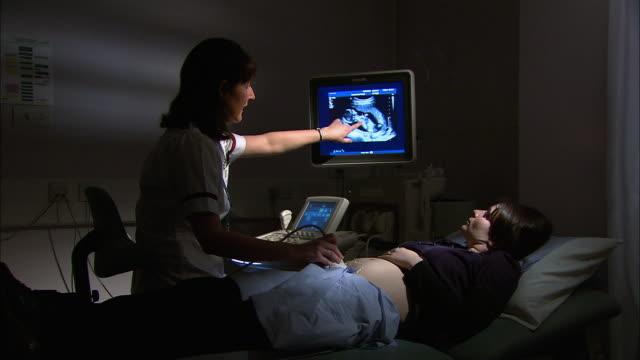 pregnant woman ultrasound - menschliche fruchtbarkeit stock-videos und b-roll-filmmaterial