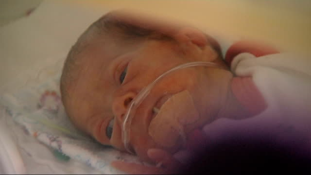 Premature babies study shows rise in survival rates Premature baby in incubator with feeding tube Baby in incubator as stroked by mother