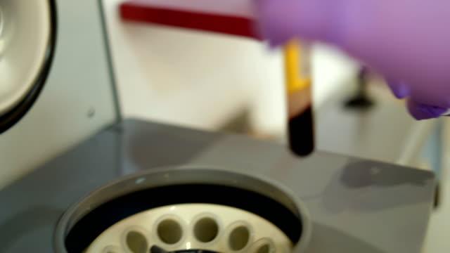preparing blood plasma for vampire treatment - centrifuge stock videos & royalty-free footage
