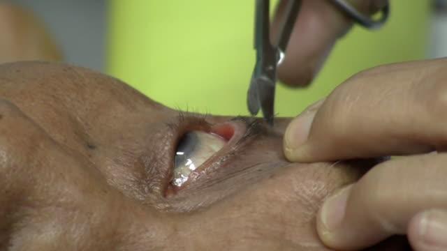 Vorbereitung für Augenoperation