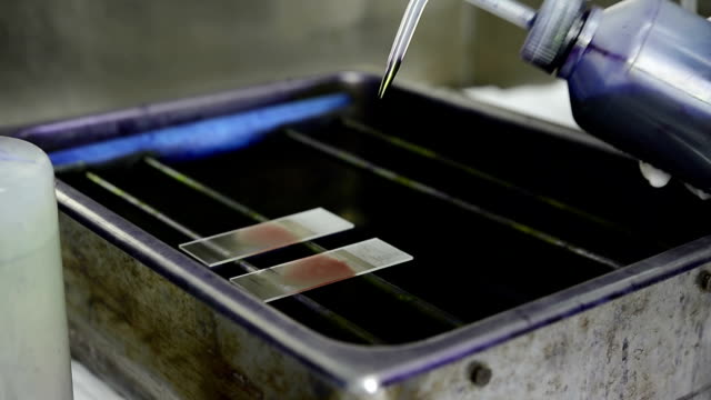 preparing wright stain human blood smear on glass slide - stain test stock videos & royalty-free footage