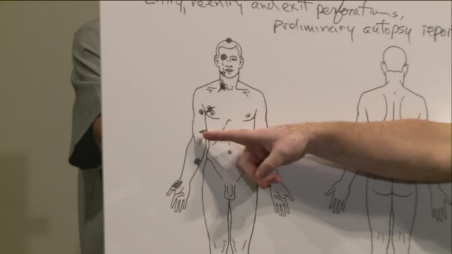 vídeos y material grabado en eventos de stock de ktvi professor shawn parcells a pathology assistant explains the results of the independence autopsy of michael brown who was shot six times by a... - autopsia
