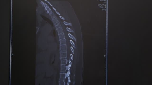 profile xray of human adult back, spine, affected with kyphosis or scoliosis. - scoliosis stock videos and b-roll footage