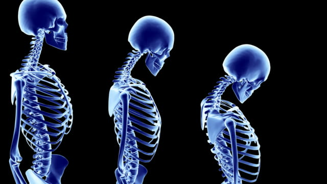progression of osteoporosis, shown with graphics of x-rays of skeletons at worsening stages of the condition. - posture stock videos and b-roll footage