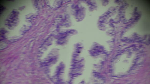 Prostate hypertrophy biopsy under light microscopy