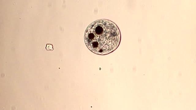protist - protozoan stock videos and b-roll footage