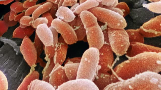 "stockvideo's en b-roll-footage met ""pseudomonas aeruginosa bacteria, sem"" - netvlies"