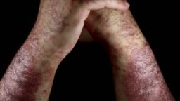 Psoriasis (eczema) on the arm Man itching skin Psoriasis on black background