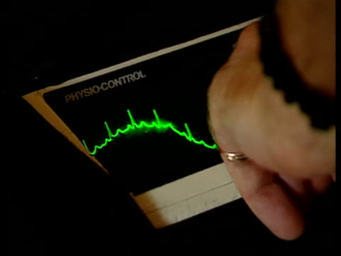 cu pulse monitor showing uneven pulse rate and pressure - uneven stock videos & royalty-free footage