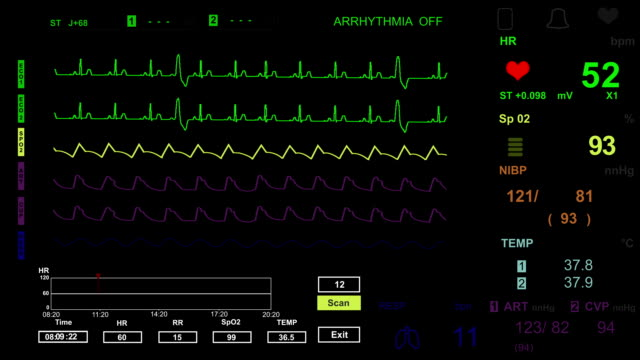 pulse monitor - human heart stock videos and b-roll footage