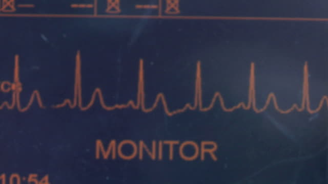 ecu pulse trace machine showing heart rate, new london, wisconsin, usa - liniendiagramm stock-videos und b-roll-filmmaterial