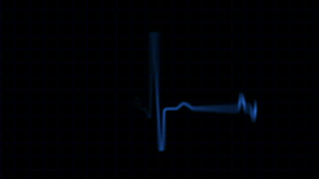 pulse trace - listening to heartbeat stock videos & royalty-free footage