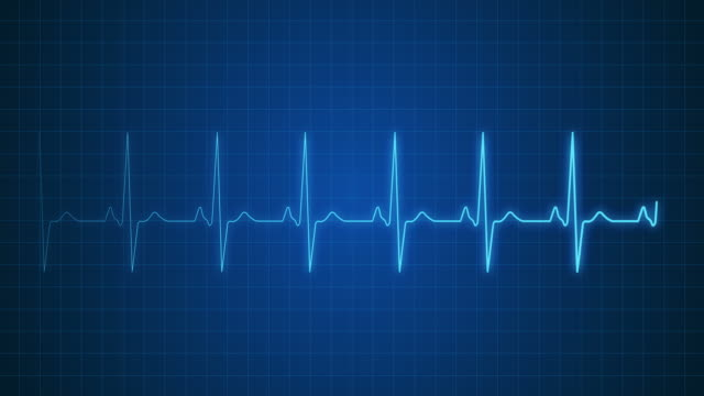 ekg pulse trace with sound | loopable - pulse oxymeter stock videos and b-roll footage