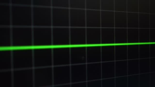 vidéos et rushes de ekg pulse - mort concepts